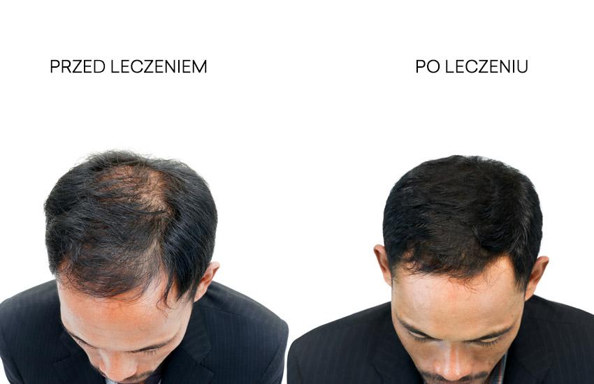 Łysienie polekowe - przed i po leczeniu