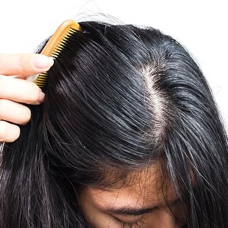 Przyczyny grzybicy skóry głowy